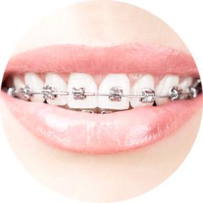 orthodontie-3d-bague-ceramique
